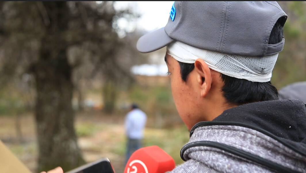 """Joven Pehuenche agredido por comuneros en fundo Los Chenques: """"no respetaron nuestros derechos humanos"""""""