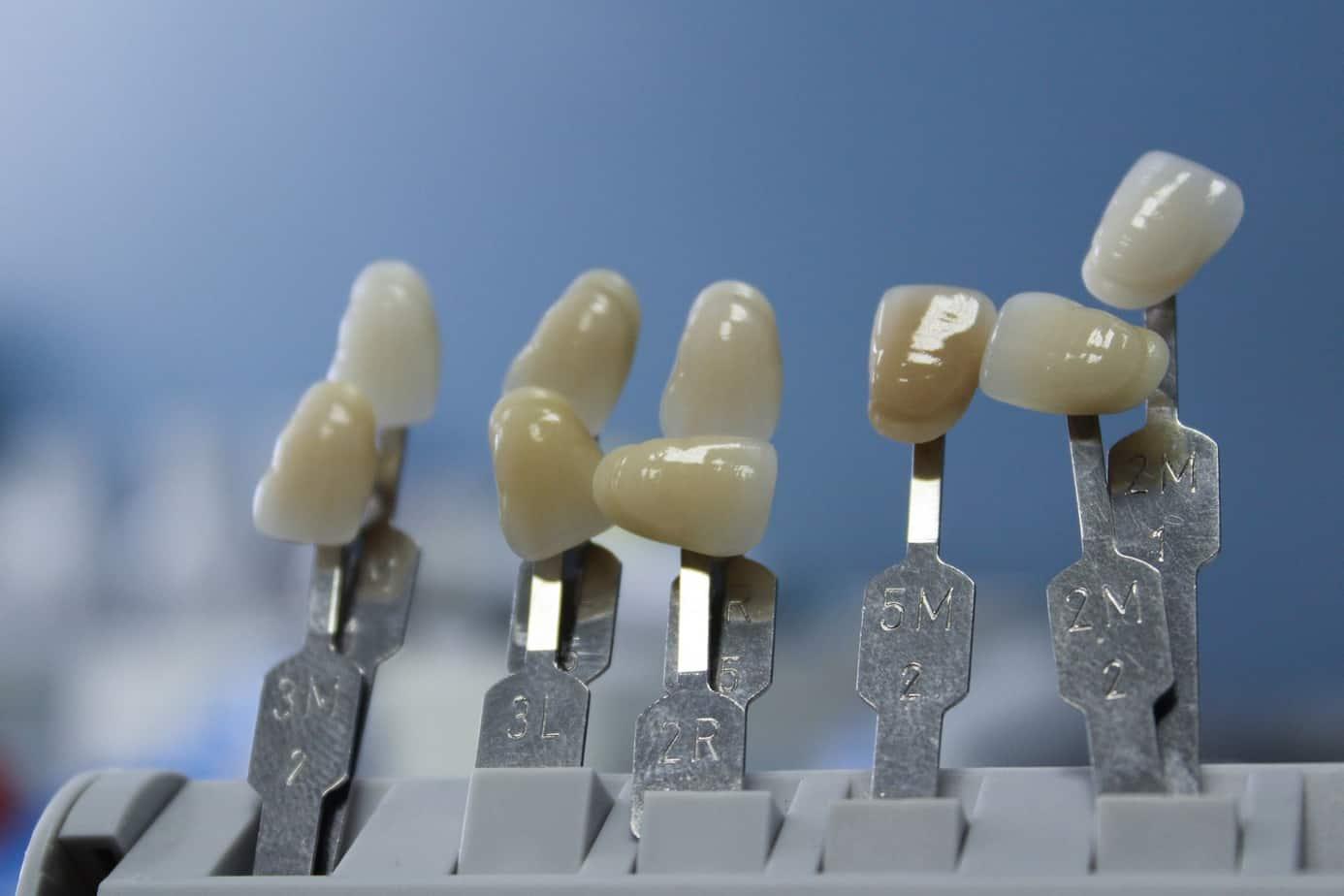 Concejo aprueba 20 millones de los fuegos artificiales para laboratorio dental angelino