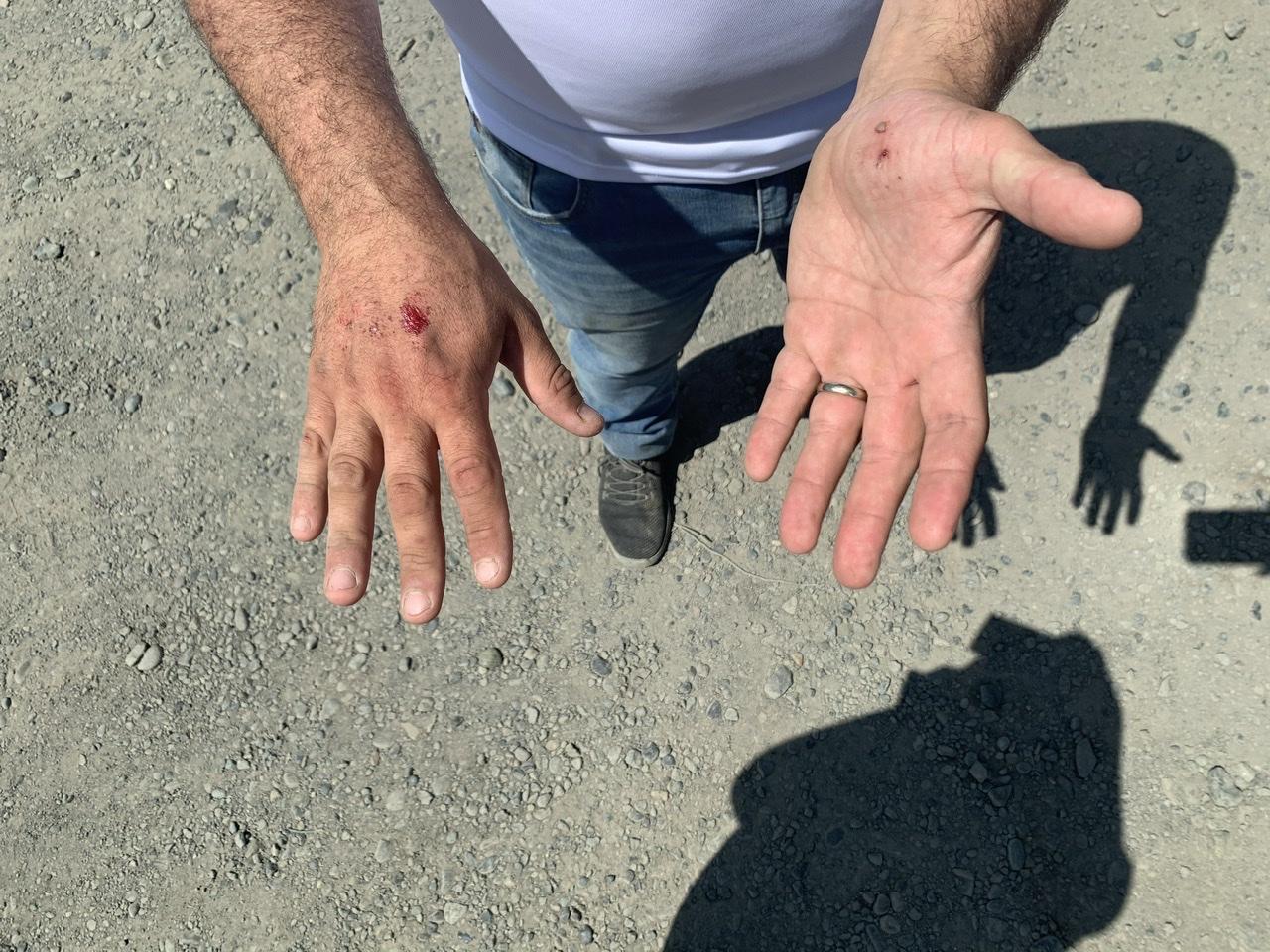 Empresario agrícola sufre violento robo en Los Ángeles