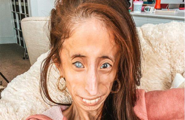 Activista  con rara enfermedad pide que dejen de usar su rostro en cruel broma viral
