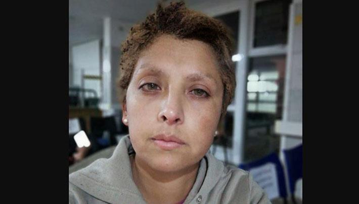 Mujer de L.A denuncia que expareja intentó quemarla a ella y a sus hijos: sujeto es funcionario de Carabineros